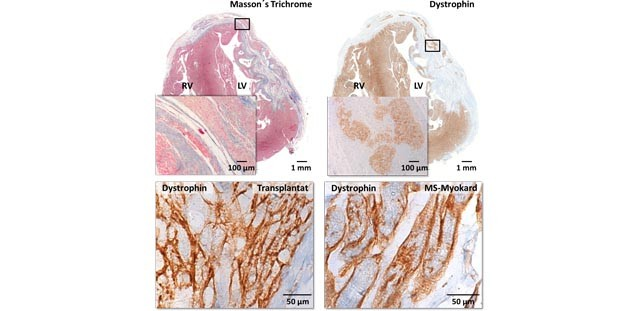 Sections of guinea pig heart tissue