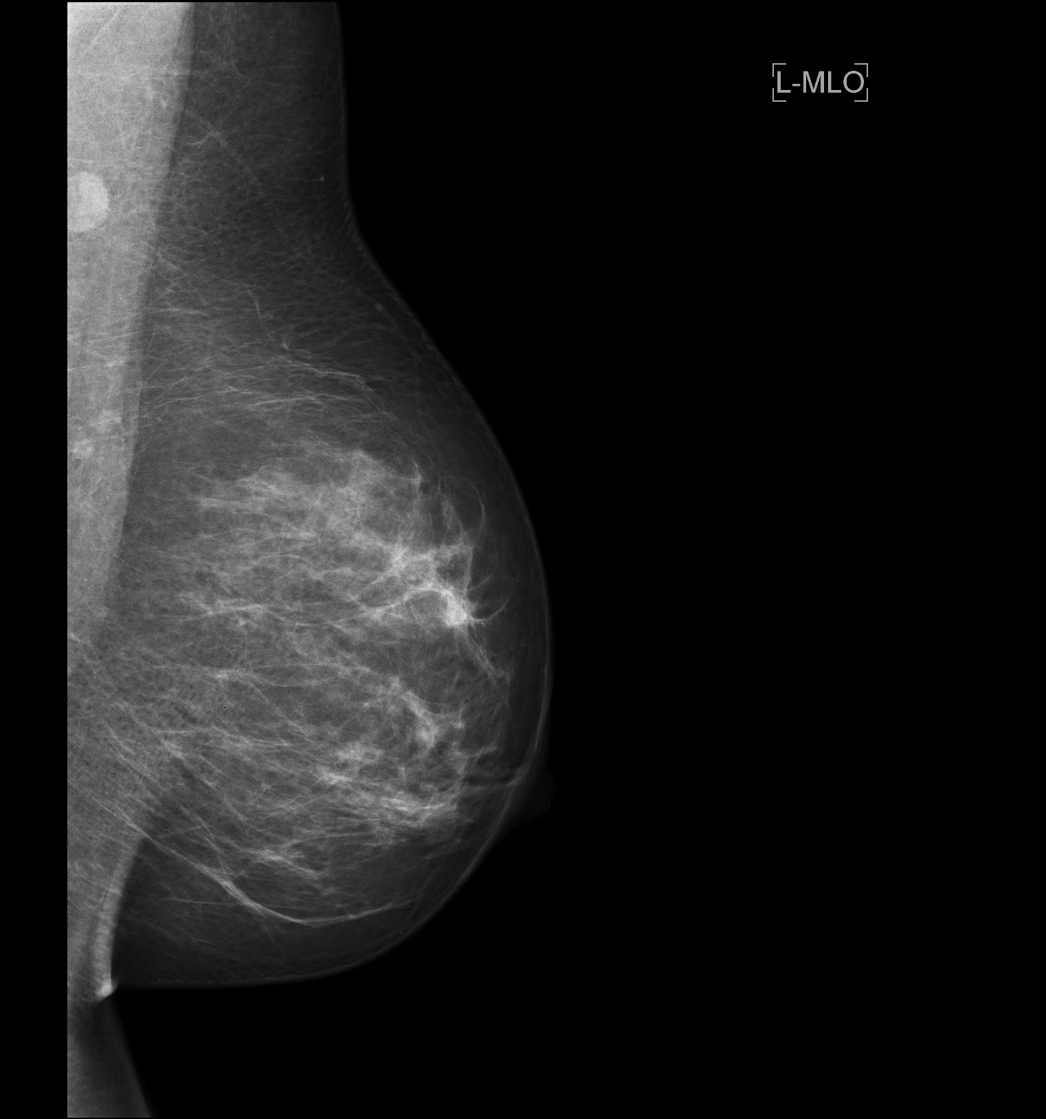 UKE - Diagnostische und Interventionelle Radiologie und Nuklearmedizin