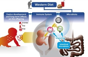 Hypothetical impact of western diet on immune system and foetal and offspring's development