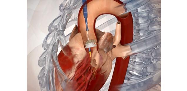 UKE - Herz- und Gefäßchirurgie - Behandlungsangebot