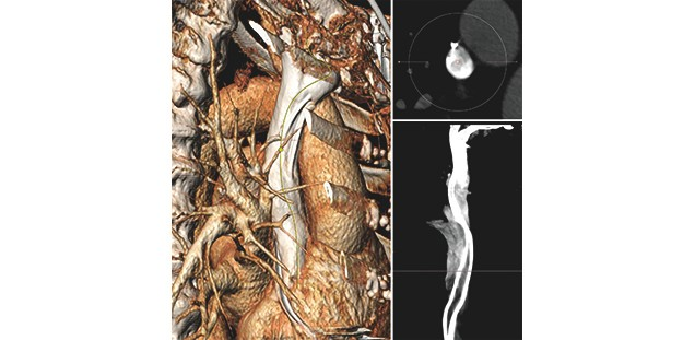 Präoperative Diagnostik vor der Sondenextraktion (3D CT)